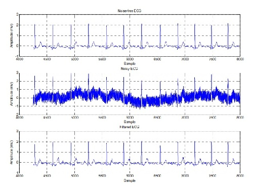 دانلود پایان نامه کامل استفاده از شبکه های عصبی ویولت جهت حذف نویز سیگنال ECG به همراه کد کامل متلب و پاورپوینت